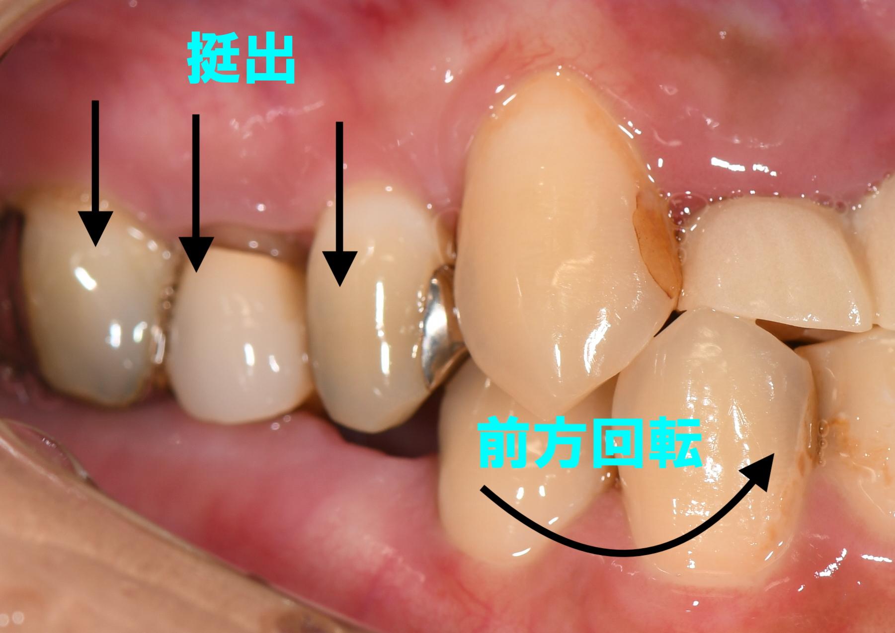 歯の挺出   <ネット予約可>静岡市の歯医者は小嶋デンタルクリニック